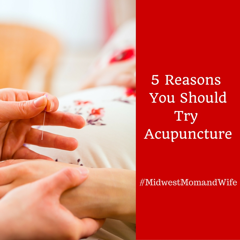Five Reasons You Should Try Acupuncture